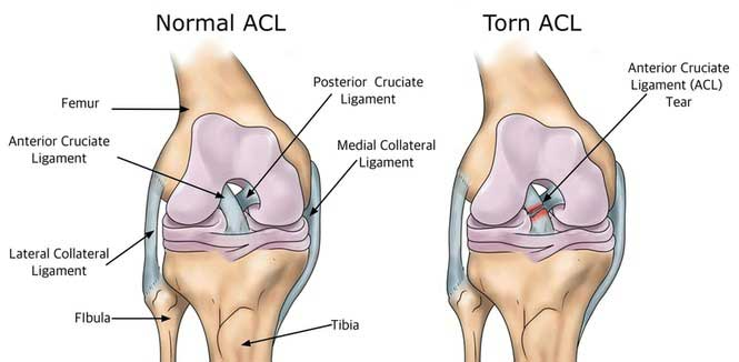 What Can Be Done For An Acl Tear Acl Tear Surgery At Jaipurjoints