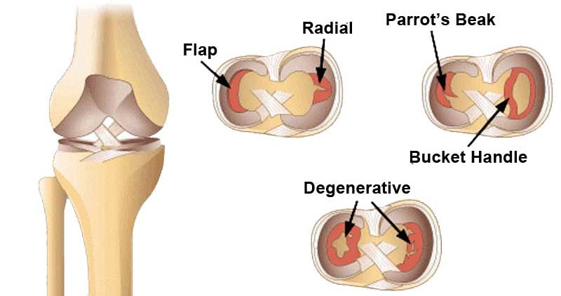 Meniscus Tear: Causes, Symptoms and Treatment