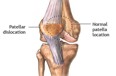 Patellar Dislocation