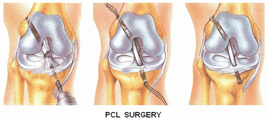 Know more about PCL Reconstruction