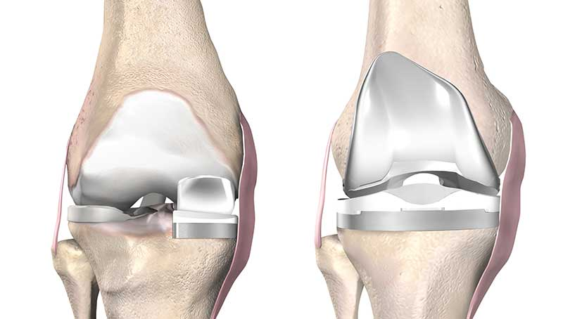 Unicondylar Knee Replacement