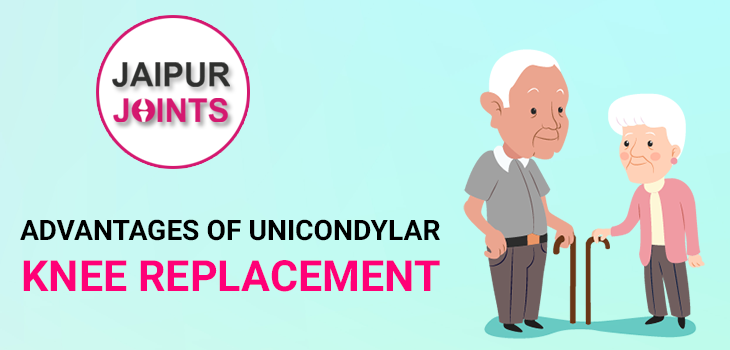 Unicondylar Knee Replacement Advantages
