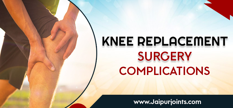 Knee Replacement Surgery Complications