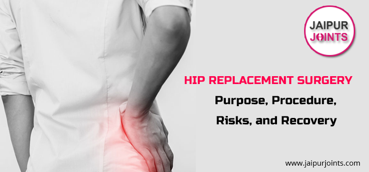 Hip Joint Replacement Surgery Risks: Purpose, Procedure,and Recovery