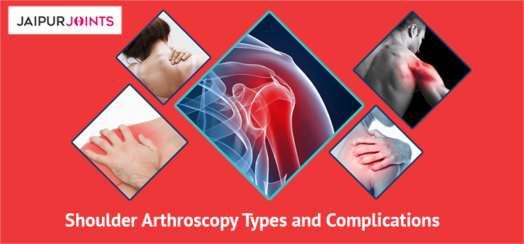 Shoulder Arthroscopy Types and Complications
