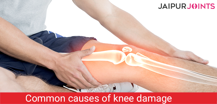 Common causes of knee damage