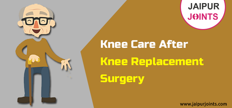 Knee Care After Knee Replacement Surgery