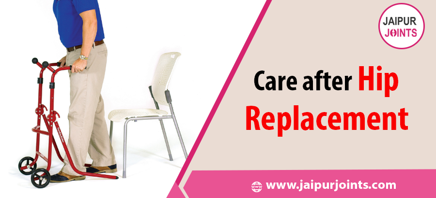 Care after Hip Replacement Surgery.