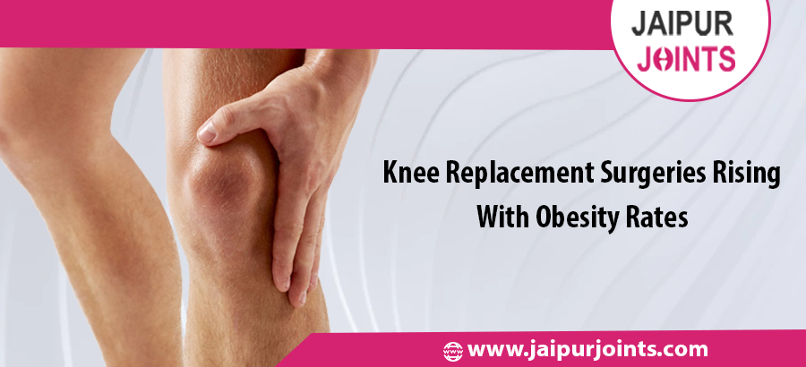 Knee Replacement Surgeries Rising With Obesity Rates.