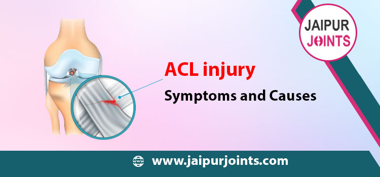 ACL injury: Symptoms and Causes