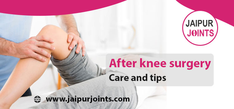 After knee surgery: Care and tips