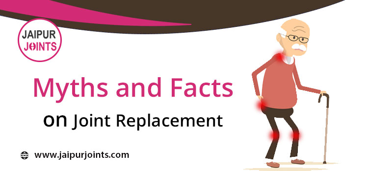 Myths and Facts on Joint Replacement
