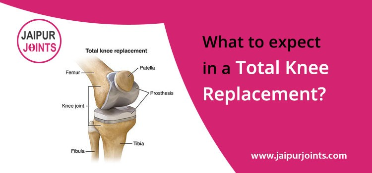 What to expect in a total knee replacement?