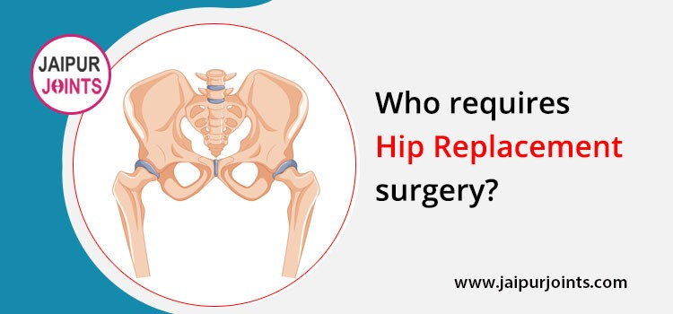 Who requires hip replacement surgery?
