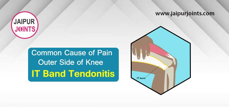 Common Cause of Pain Outer Side of Knee IT Band Tendonitis.