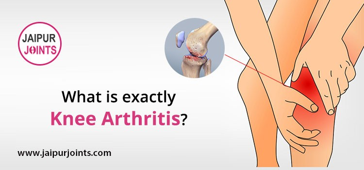 What is exactly knee arthritis?
